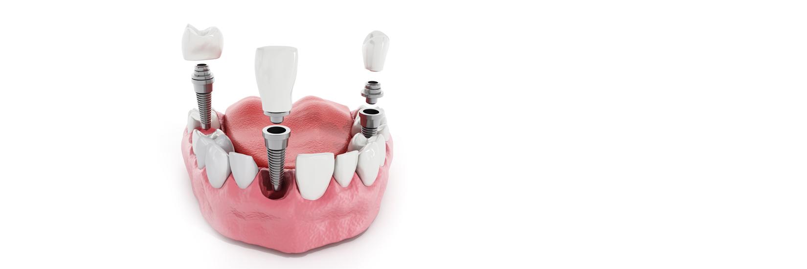 Reliance-Dental_Slider_Services-05